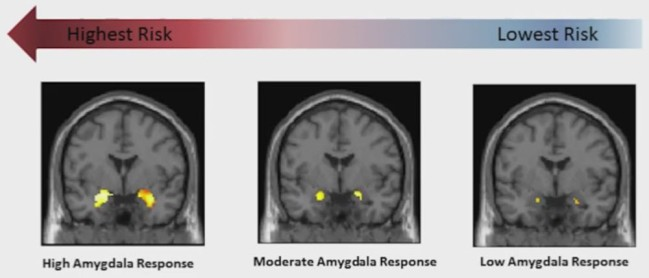 The higher your baseline amygdalar activation, the higher the risk to develop anxiety disorders later on if expossed to life stressors. Yellow = amygdala. Photo credit: https://www.youtube.com/watch?v=JD44PbAOTy8, presumably copyrighted to Duke University.