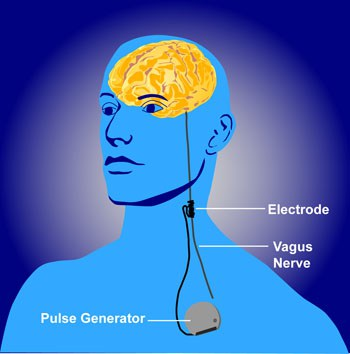61NIh NIMH vagus-nerve-stimulation-public